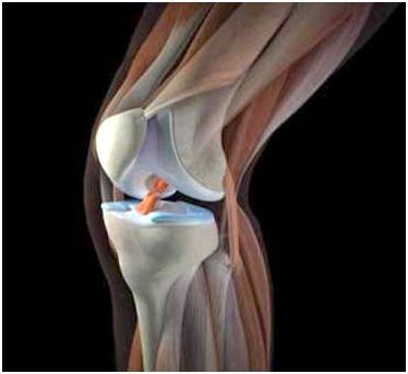 Лечение боли в колене.